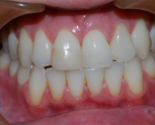Teeth Whitening St Kilda