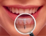Dental Implants St Kilda