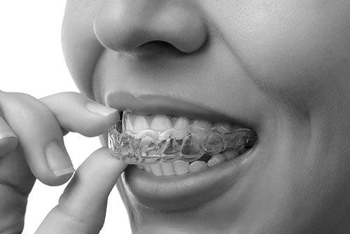 St Kilda Dentist