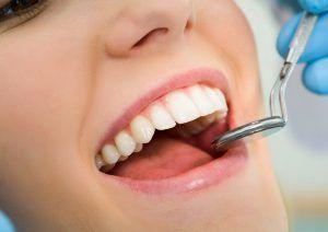 dental check ups st kilda