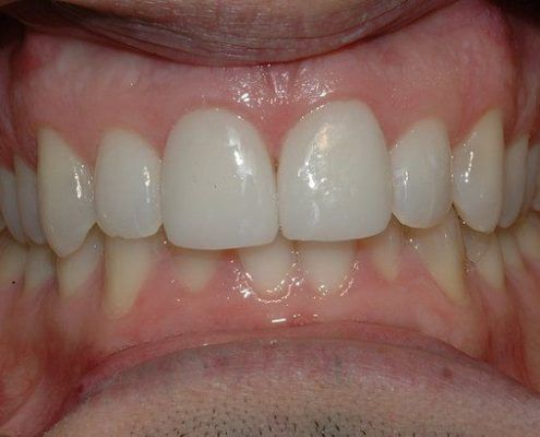 porcelain veneers in st kilda