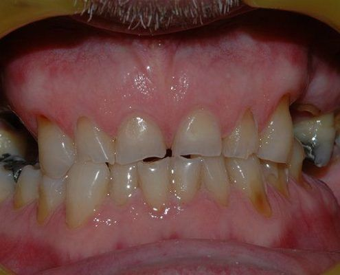 composite veneers in st kilda
