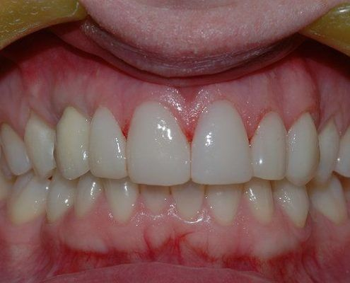 best composite veneers in st kilda