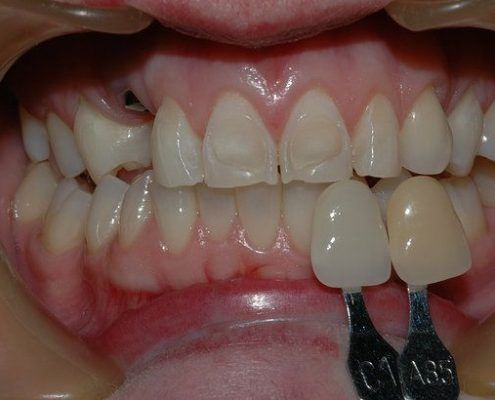composite veneers within st kilda