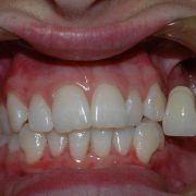 Melbourne Dentist Teeth Whitening