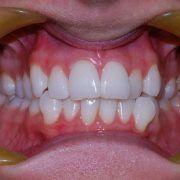 St Kilda Dentist Teeth Whitening