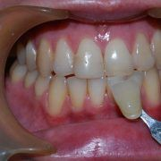 St Kilda Dentist Teeth Whitening Services