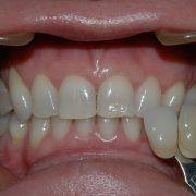 St Kilda East Teeth Whitening