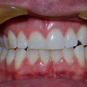 Teeth Whitening Services near Melbourne
