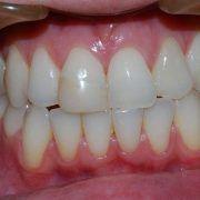 Teeth Whitening St Kilda