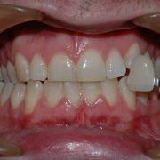 Teeth Whitening near St Kilda