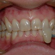 Tooth Whitening Services near St Kilda